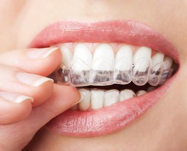 Bruxisme Dentiste colombes 92700